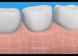 "Procter & Gamble's (Crest) ""Dentist"""